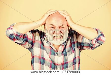Age Issues. Health Care Concept. Male Pattern Baldness Genetic Condition Caused By Variety Factors.