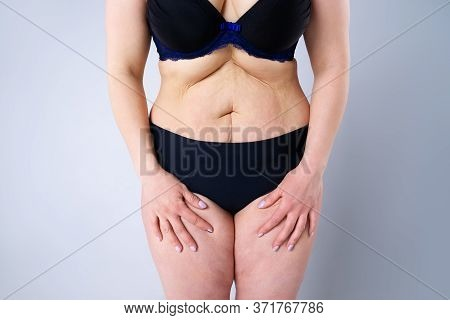 Tummy Tuck, Flabby Skin On A Fat Belly