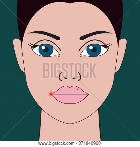 Herpes On Lip. Red Inflammation On Lip Of Woman. Vector Illustration