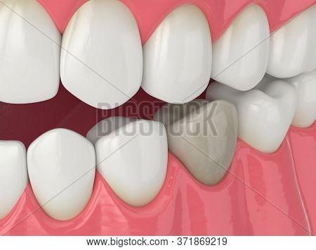 3d Render Of Jaw And Lower Premolar Tooth With Dead Pulp