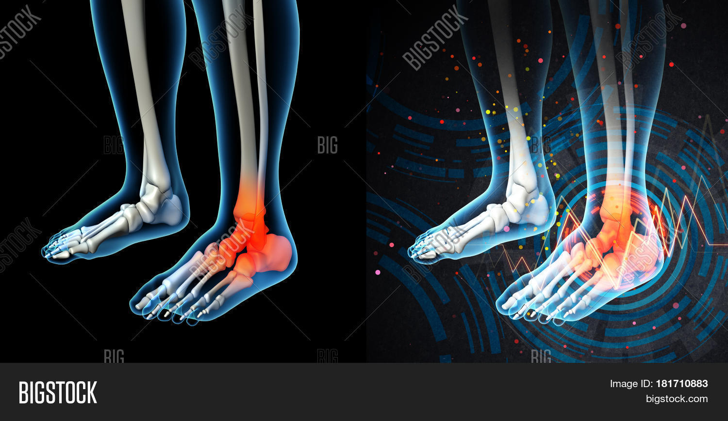 3D Render Human Foot Pain Anatomy Image & Photo | Bigstock