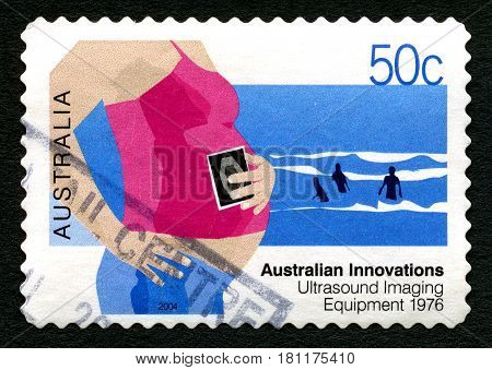 AUSTRALIA - CIRCA 2004: A used postage stamp from Australia celebrating Australian Innovations - this one commemorating Ultrasound Imaging Equipment circa 2004.