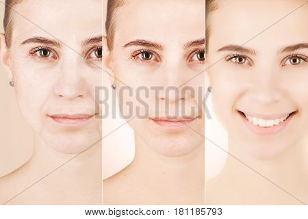 three types of age changes on woman`s face