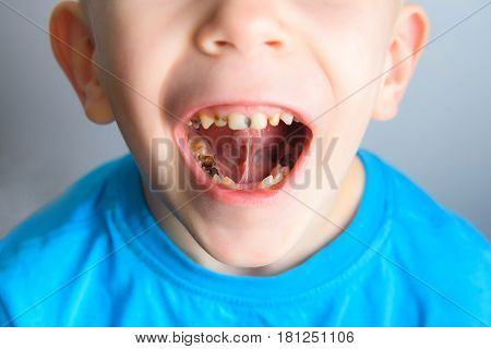 Caries on the teeth of a young child blue t-shirt