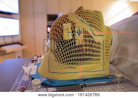 Patient Radiation therapy mask showing laser lines for targeting cancer cells in the brain