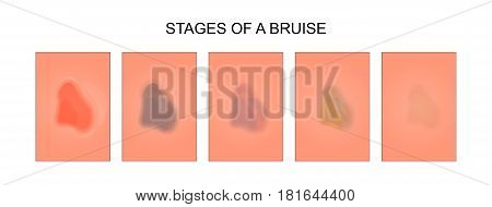 vector illustration of the stages of healing of a bruise