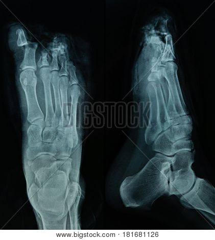 X Ray File Of Human Foot In Black Background