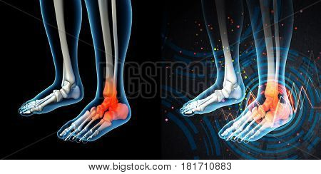 3D Render Human Foot Pain With The Anatomy Of A Skeleton Foot