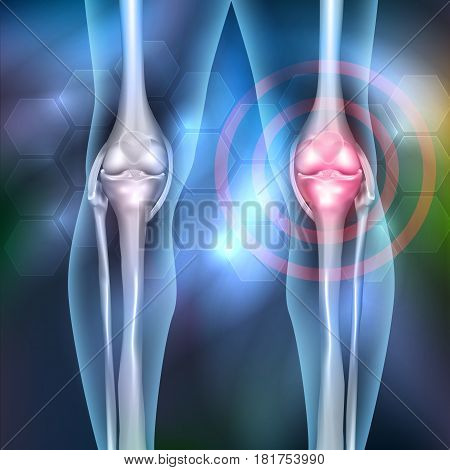 Leg joint ache anatomy beautiful abstract background