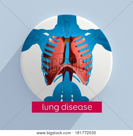 Lungs infographic. Lung disease. This is a 3d illustration.