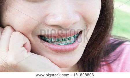 Close up woman smiling with Ceramic and Metal Braces