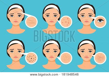 Female face with skin problems vector illustration. Woman with problem areas