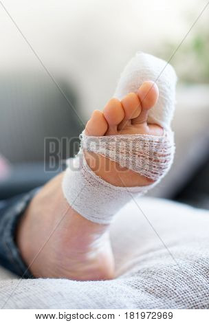 Woman With Injured Leg On Sofa At Home.
