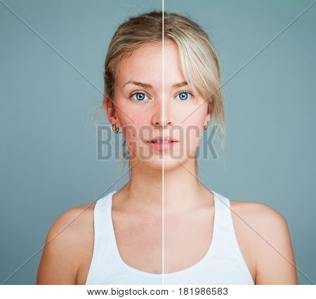 Young Model Woman with Skin Problem. Female Face Divided into two Parts one Healthy and one Unhealthy. Facial Treatment Medicine and Cosmetology Concept