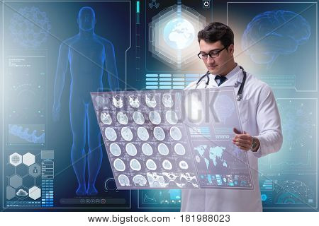 Male doctor studying results of brain mri scan