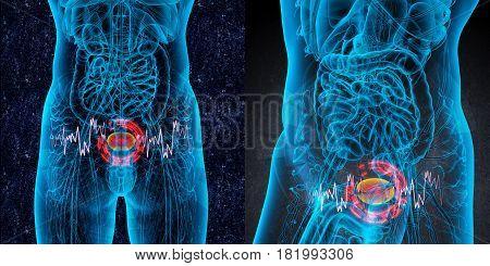 3D Rendering Medical Illustration Of The Bladder Pain