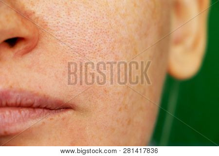 Freckles, Pigmentation, Enlarged Pores. Girl With Problem Skin