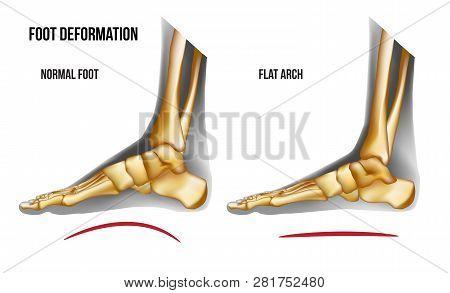 Anatomy Flat Foot Arch. Bones The Of Foot Medial View. Realistic Skeleton Of Human Leg. For Advertis