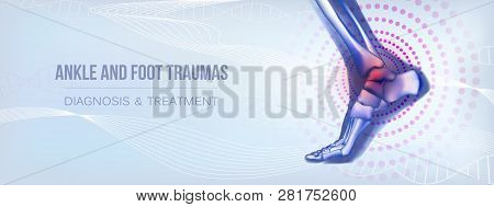 Horizontal light blue banner with ankle and foot joints traumas concept. For advertising, medical publications in social media. Realistic bones of foot skeleton of human leg. Vector illustration stock vector. poster