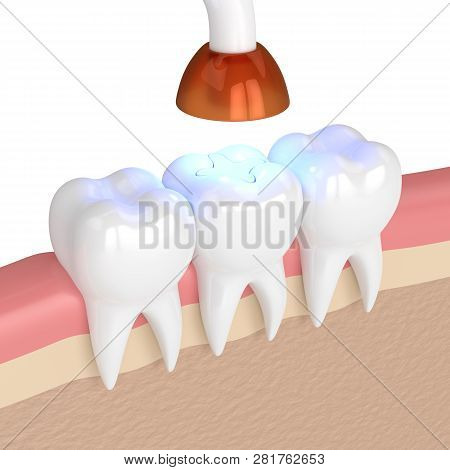 3d Render Of Teeth With Dental Polymerization Lamp And Light Cured Inlay Filling Over White Backgrou