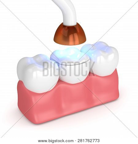 3D Render Of Teeth With Dental Polymerization Lamp And Light Cured Onlay