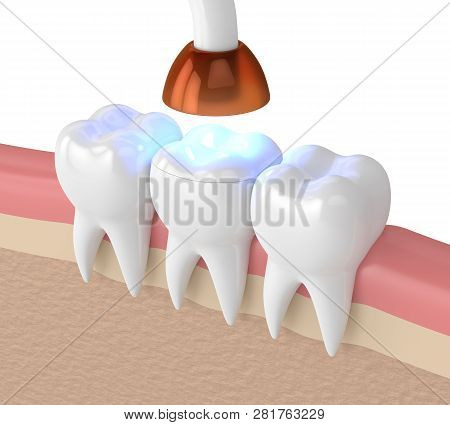 3d Render Of Teeth With Dental Polymerization Lamp And Light Cured Onlay Filling Over White Backgrou