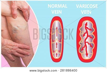 Varicose Veins On A Female Senior Legs. The Structure Of Normal And Varicose Veins. Concept Of Dry S