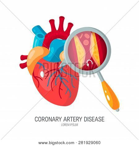 Coronary Artery Disease Concept. Human Heart And Zoomed Artery With Plaque. Medical Vector Illustrat