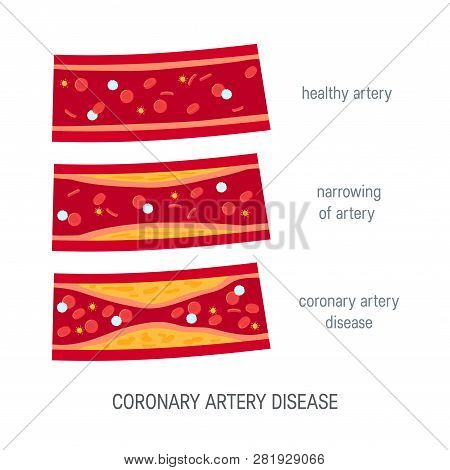 Coronary Artery Disease Concept. Healthy And Narrowed Arteries With Plaques. Medical Vector Illustra