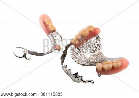 Set Of Partial Metal Upper And Lower Removable Dentures On White Background With Clipping Path.