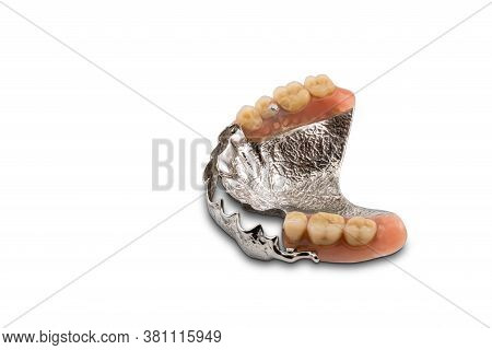 Removable Swinglock Type Denture Isolated On White Background With Clipping Path.