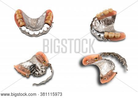 Upper Partial Metal Swinglock Type Denture Open And Close On White Background.