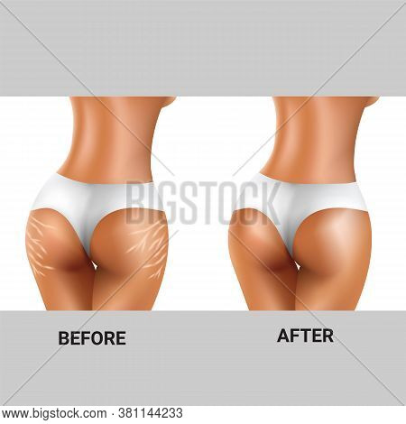 Before And After Of Stretch Marks On Woman's Buttocks For Health Care Concept