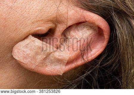 Woman Who Had Ear Acupuncture Treatment Done On Her Ear