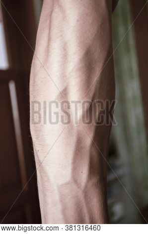 Forearm Of The Guy Of 18 Years With Very Convex Veins, Outside
