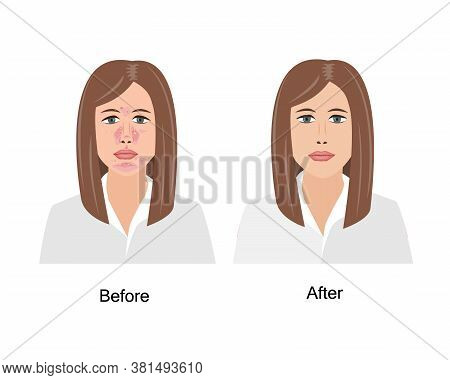 Woman Suffering From Seborrheic Dermatitis Before And After Medical Treatment. Vector Illustration.