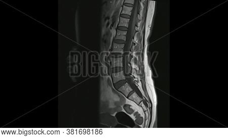 Magnetic Resonance Images Of Lumbar Spine Sagittal T1-weighted Images  (mri Lumbar Spine) Showing Mi