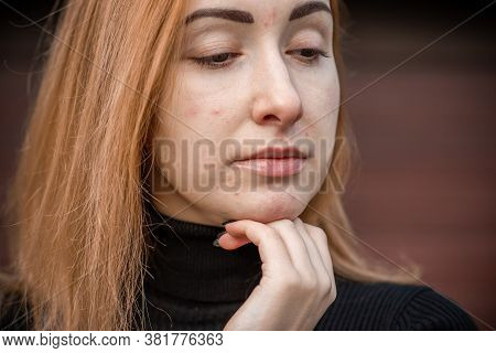 Acne And Scars, Simple Woman Close Up Natural Portrait, No Makeup And Retouch. Problem Skin
