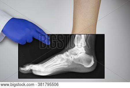 X-ray Of A Woman's Foot. A Photograph Of The Leg Bones Is Applied To The Patient's Feet. The Radiolo