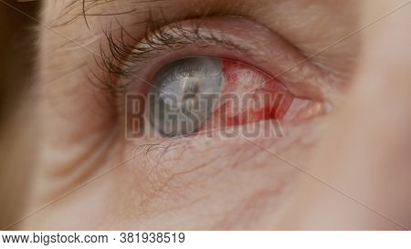 Close Up. Woman Eye With Chemical Burns Of The Cornea. Burst Capillaries, Cataract Surgery.