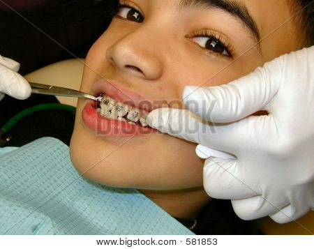 Fitting Of Braces