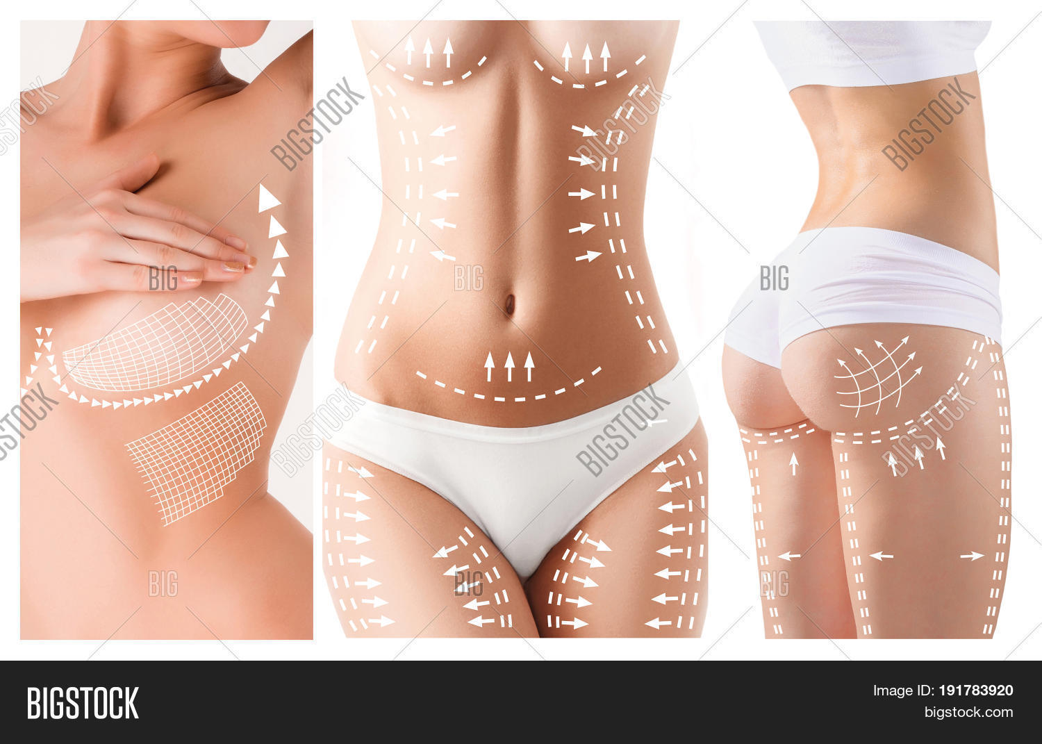 Cellulite Removal Plan Image & Photo (Free Trial) | Bigstock