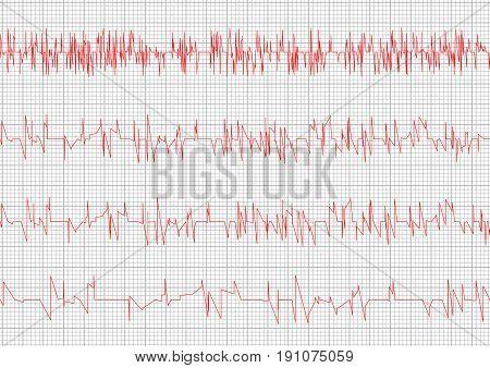 Red Heart cardiogram vector charts set. Healthy heart rhythm