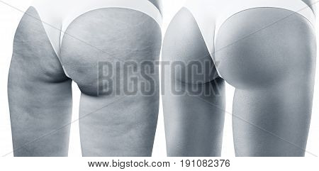 Buttocks of young woman before and after treatment. Cellulite problem concept. Isolated on white.