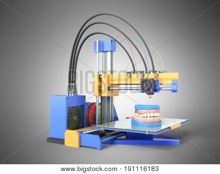 The Concept Of Dental Prosthetics Denture To 3D Printers 3D Render On A Gray Background