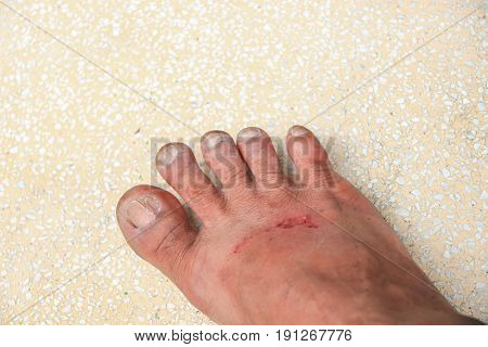 foot wound becomes infected select focus with shallow depth of field.