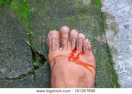 foot wound becomes infected with apply medication select focus with shallow depth of field.