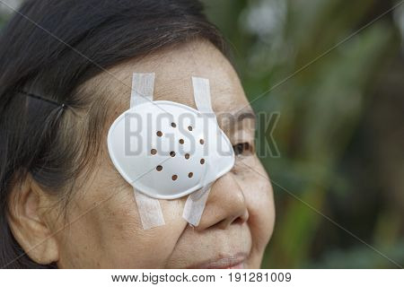Eye shield covering after cataract surgery .