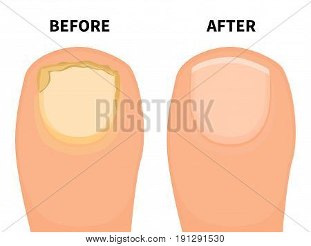 Vector illustration of a big toe before and after a fungal disease. Isolated white background. Sick fungus nail and healthy beautiful nail. Flat style.