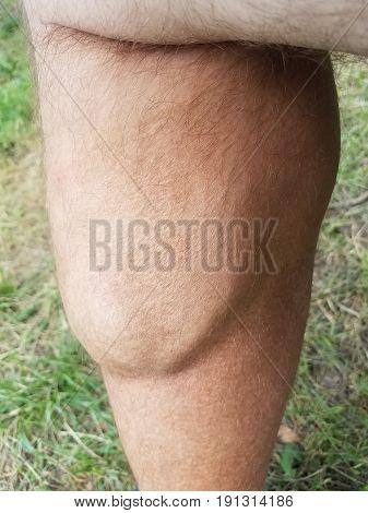large flexed calf muscle on hairy man's leg